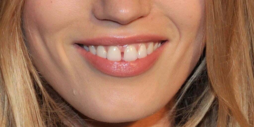 Диастема: нужно ли убирать щель между зубами?