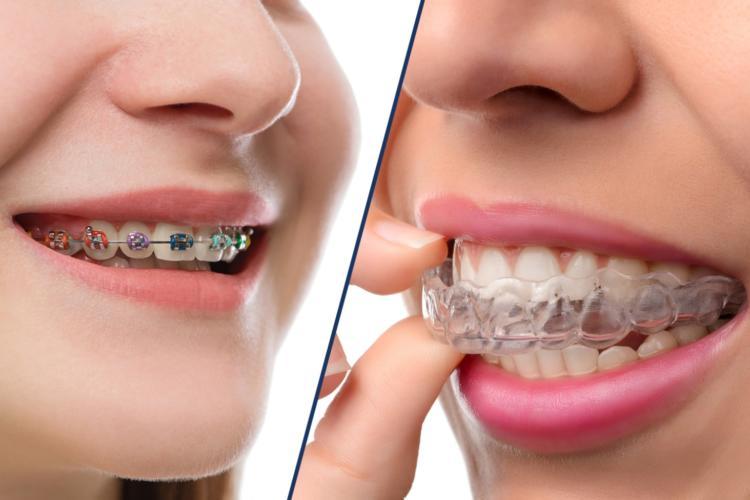 orthodontics-2-750x500-1